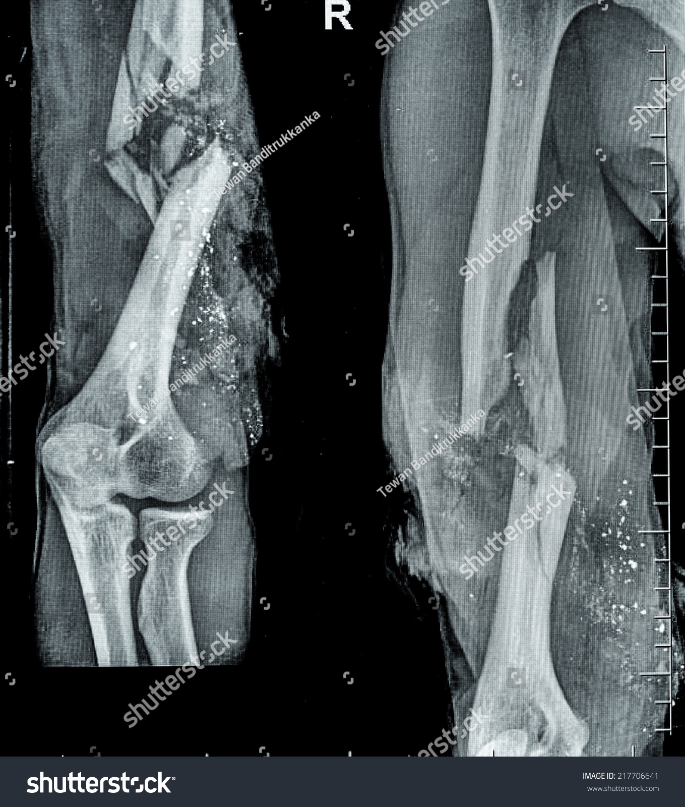 Xray Image Fracture Bone Stock Photo Edit Now 217706641 Shutterstock