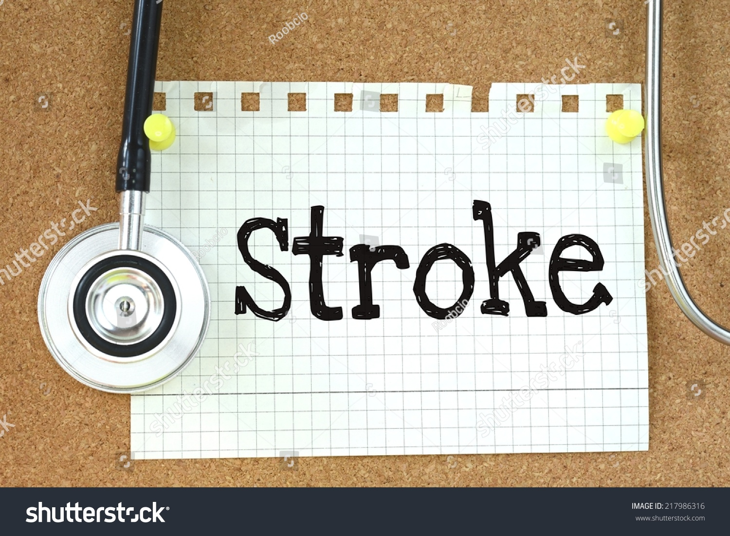 stroke risk paper Oral contraceptives increase the risk of ischemic stroke, but this risk is very small among women who do not have other stroke risk factors, according to a jan 3, 2018 paper in the journal medlink neurology by loyola medicine.