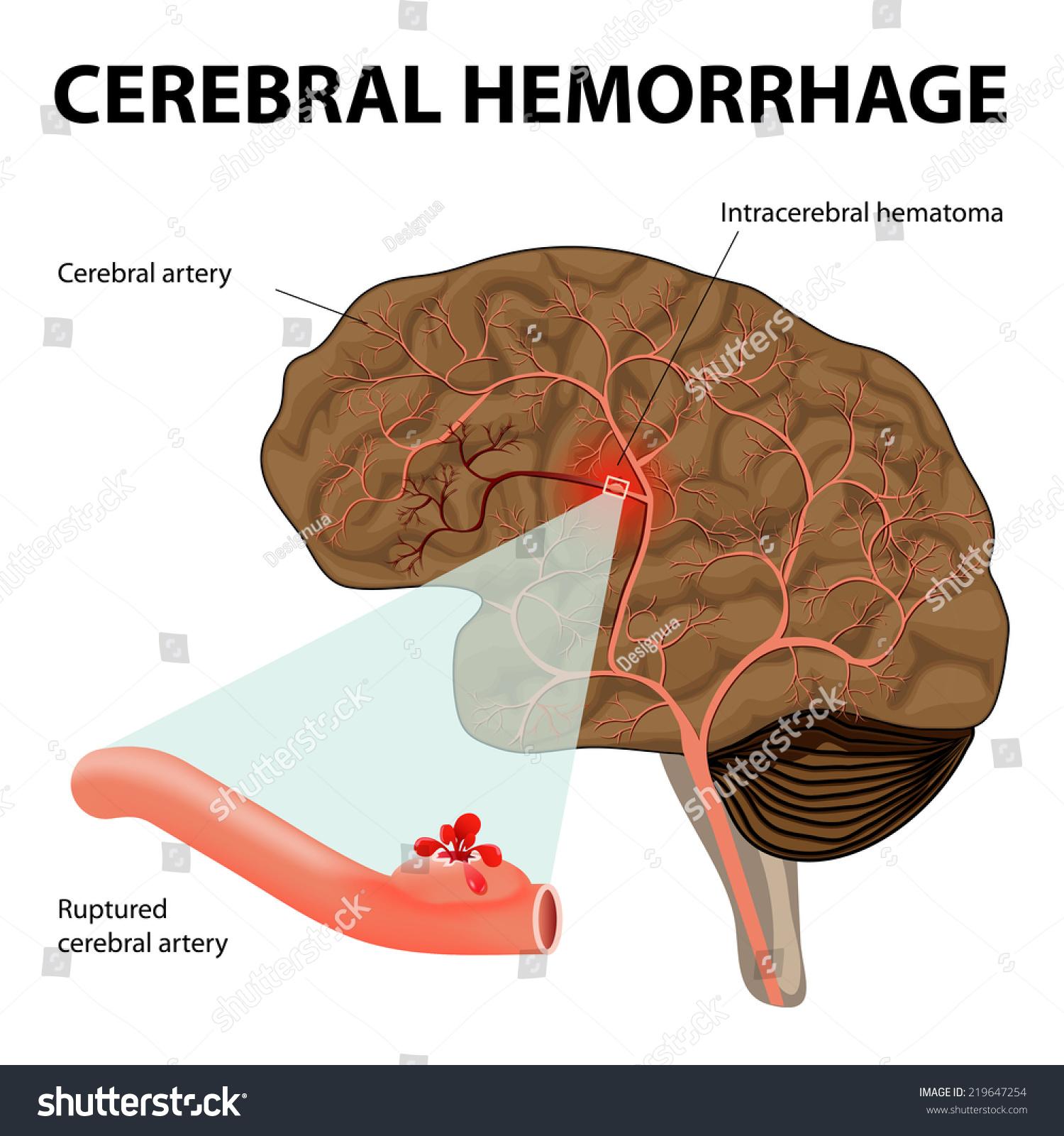 Cerebral Hemorrhage Intracerebral Hemorrhage Rupture Cerebral Stock ...