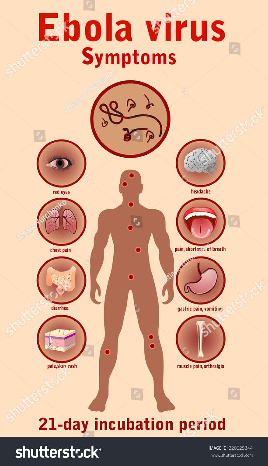 ebola virus history symptoms and treatment Treatment for ebola focuses on offering supportive care so that the patient's own immune system can fight off the virus the predominant symptoms of acute ebola infection are severe vomiting and.
