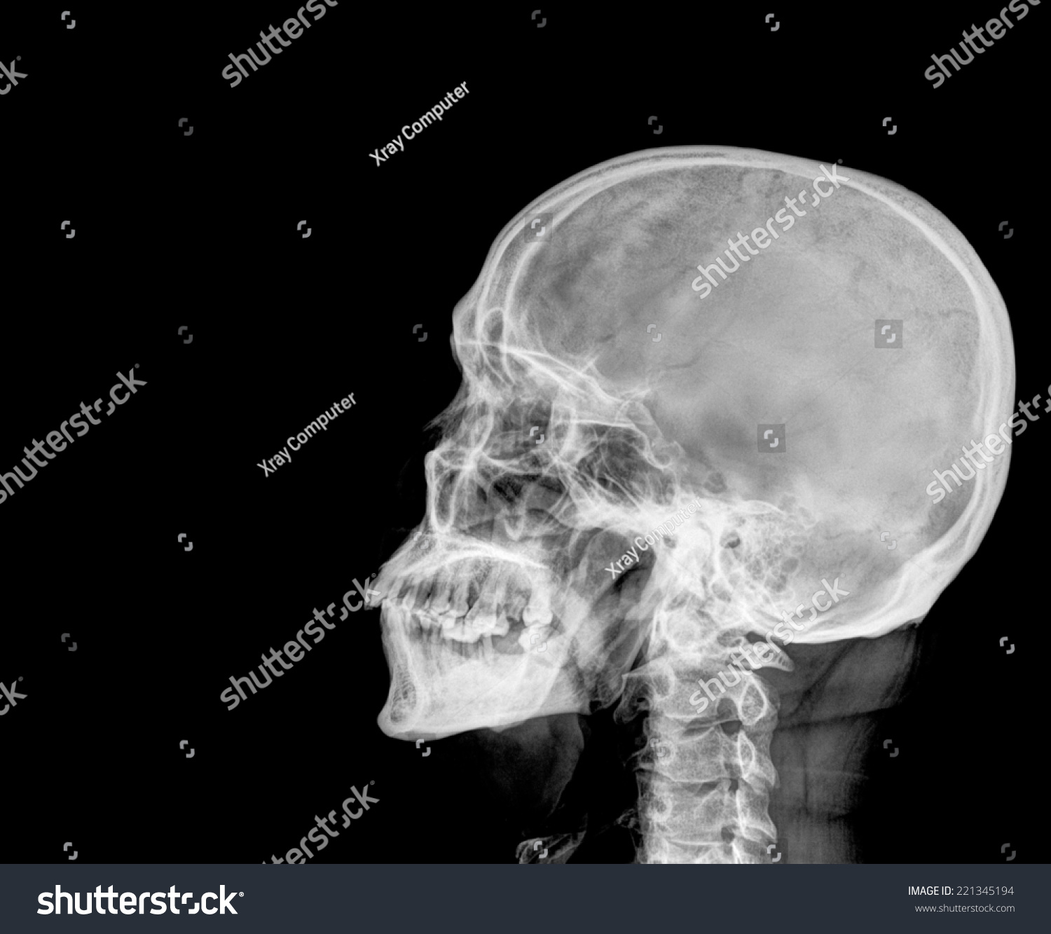 Film Xray Skull Lateral Show Normal Stock Photo Royalty Free