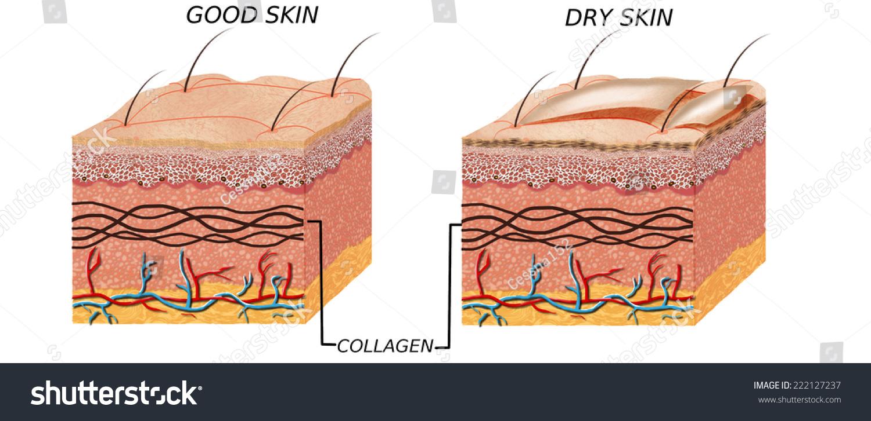 Skin Anatomy Diagram Comparation Good Skin Stock Illustration ...
