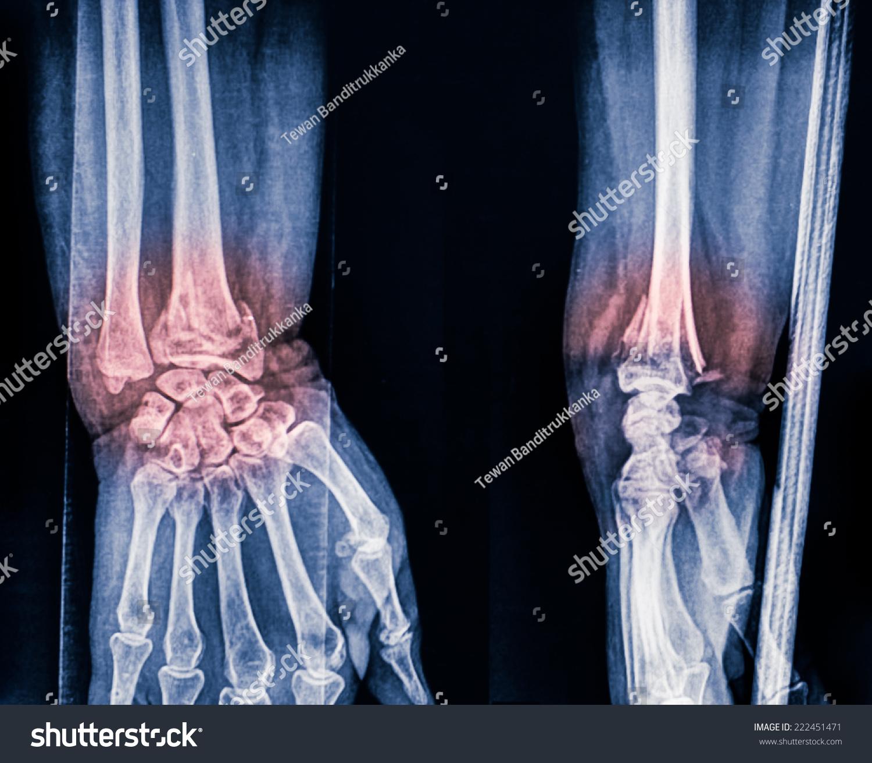 Film Wrist Show Fracture Distal Radius Stock Photo (Royalty Free ...