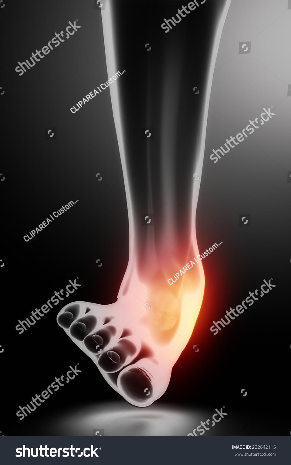 Sprained Ankle Black Xray Stock Illustration 222642115 - Shutterstock