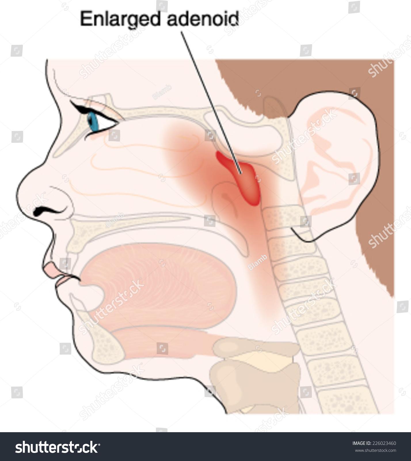 Enlargement Adenoid Glands Children Showing Anatomic Stock Vector