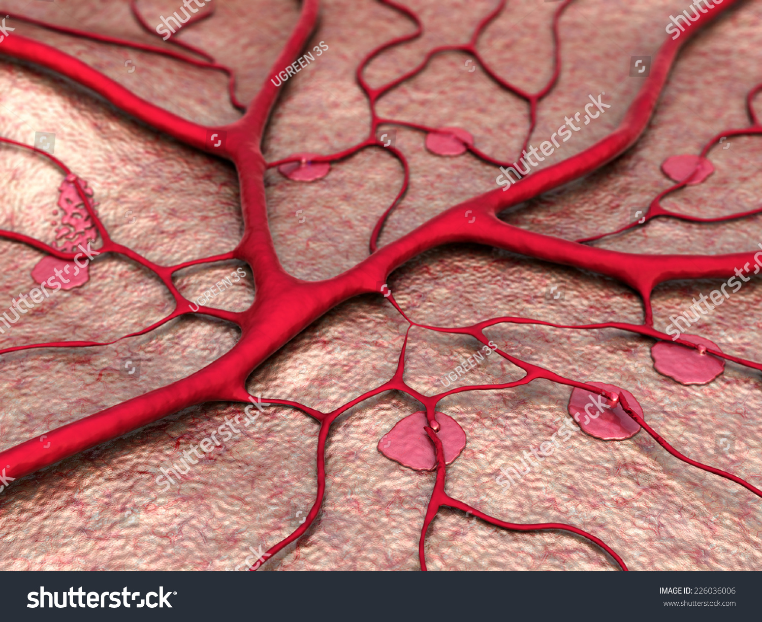 Circulatory System Disease Heart Attack Capillary Stock Illustration
