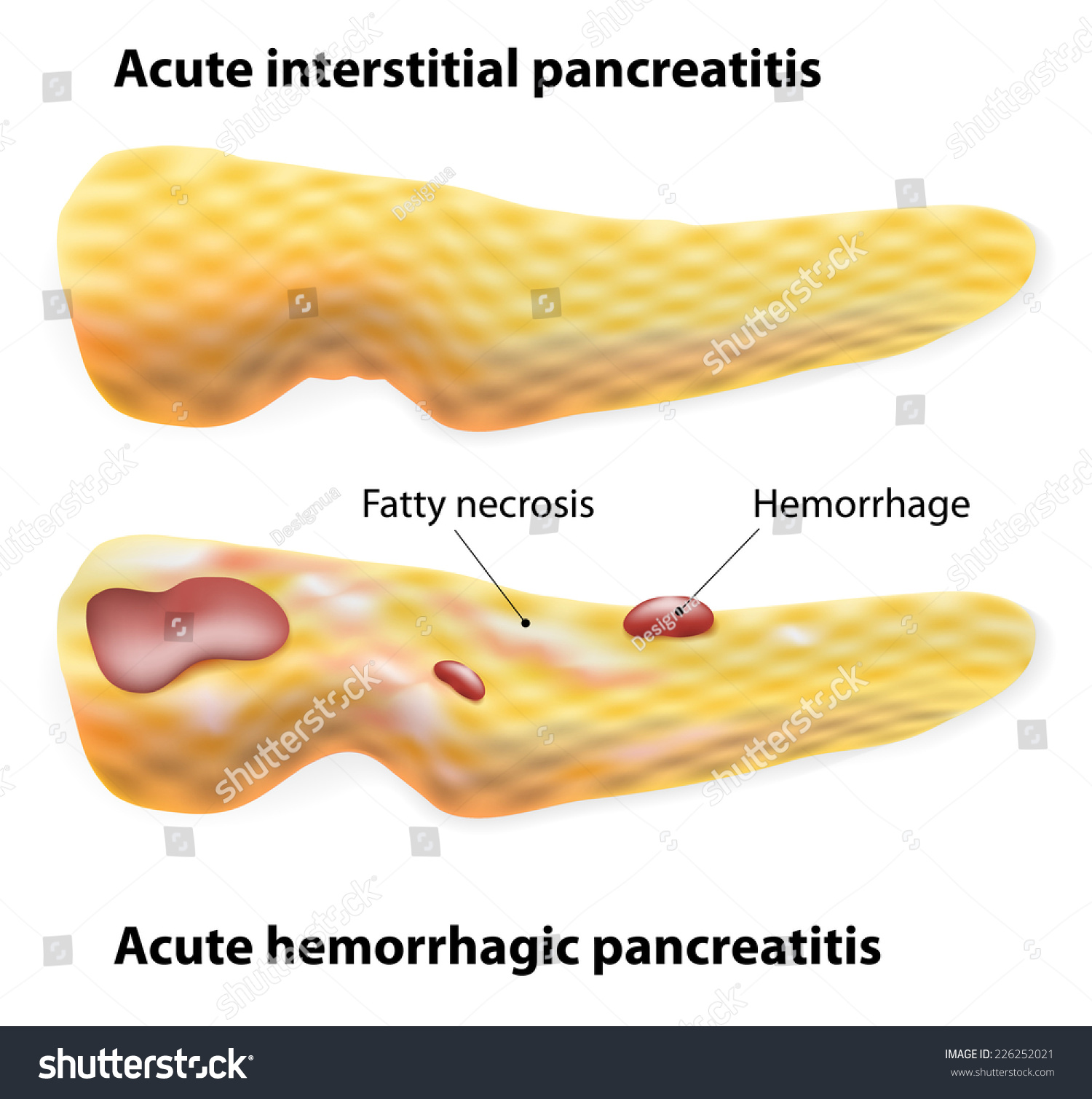 The anatomic location of pancreatic cancer is a prognostic factor for survival