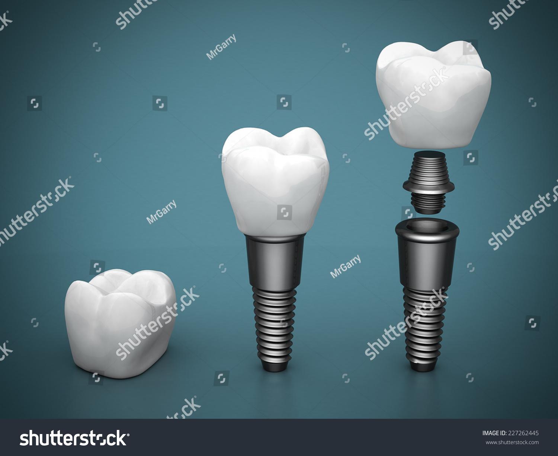 Dental Implants On A Beautiful Blue Background Stock Photo ... Dental Implant Background