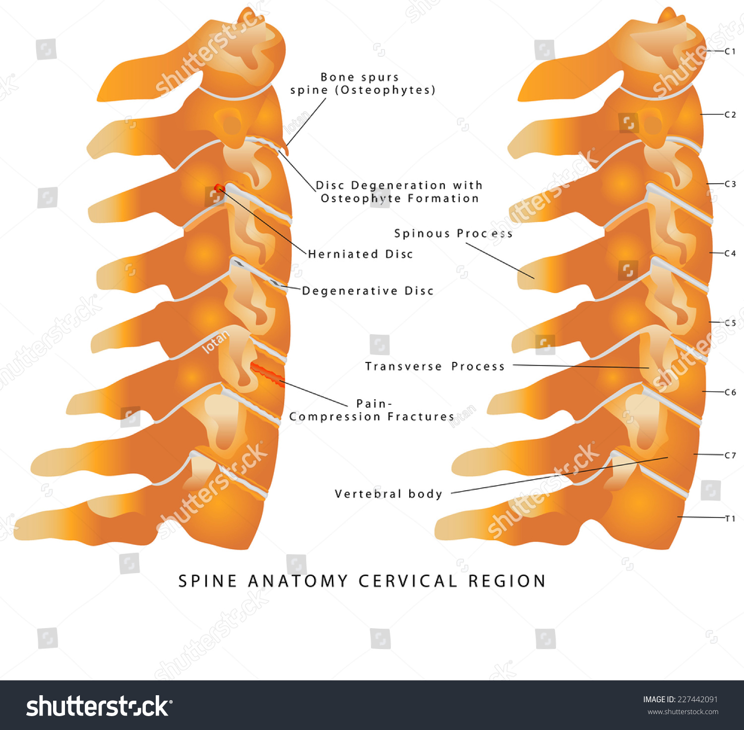 Cervical Spine Spine Anatomy Cervical Region Stock Vector 227442091 ...