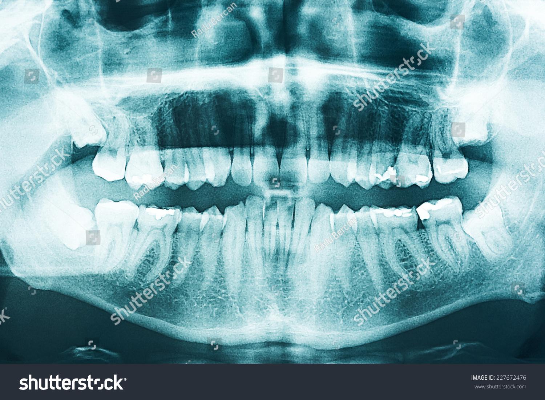 Panoramic Dental X Ray Human Teeth Stock Photo (Royalty Free ...