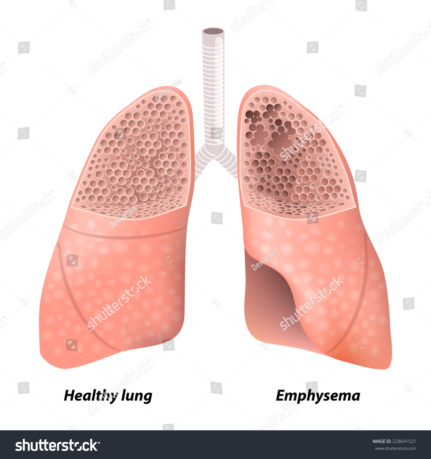 Emphysema chronic obstructive pulmonary disease diagram stock chronic obstructive pulmonary disease diagram showing a cross section of normal lung ccuart Images