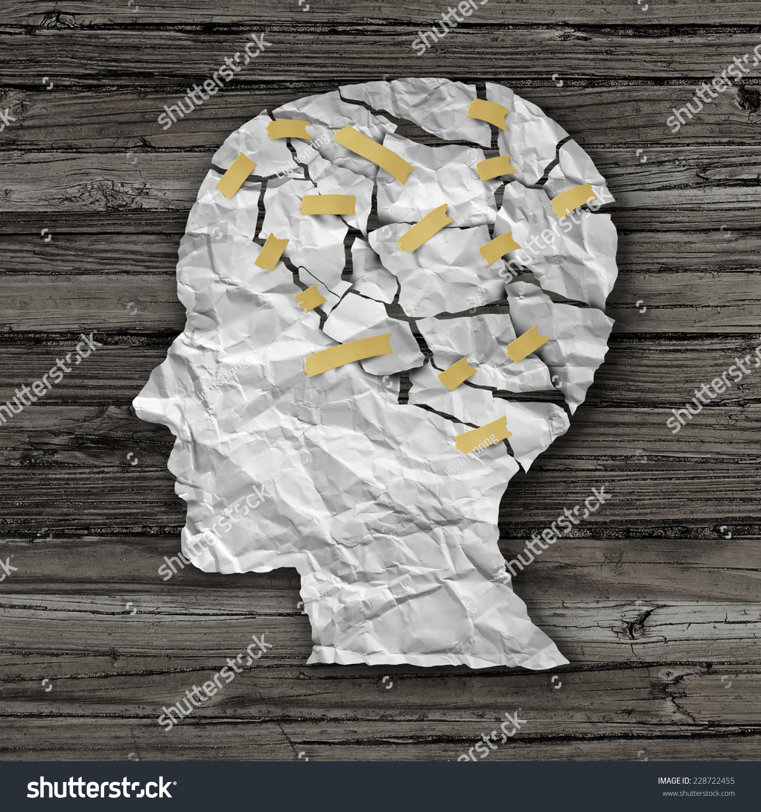 Memory loss side effect of amitriptyline picture 1