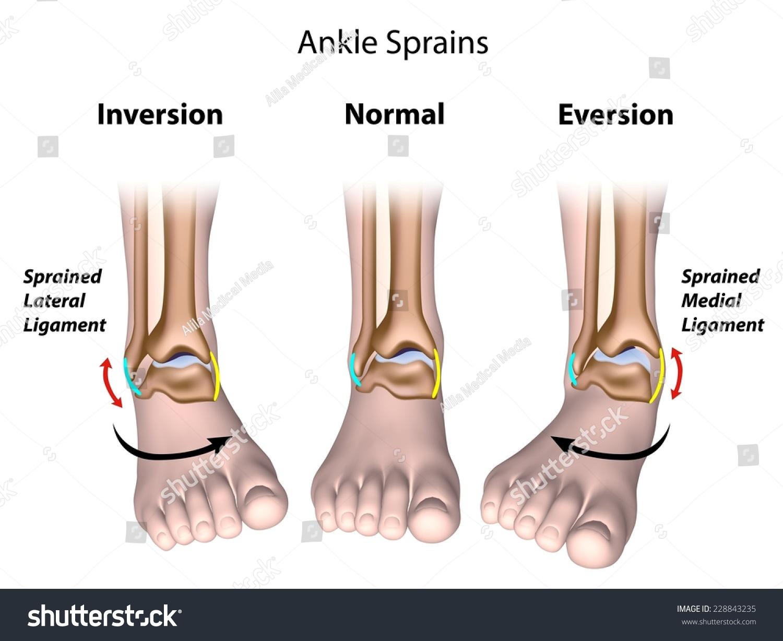 Types Ankle Sprains Stock Illustration - Royalty Free Stock ...