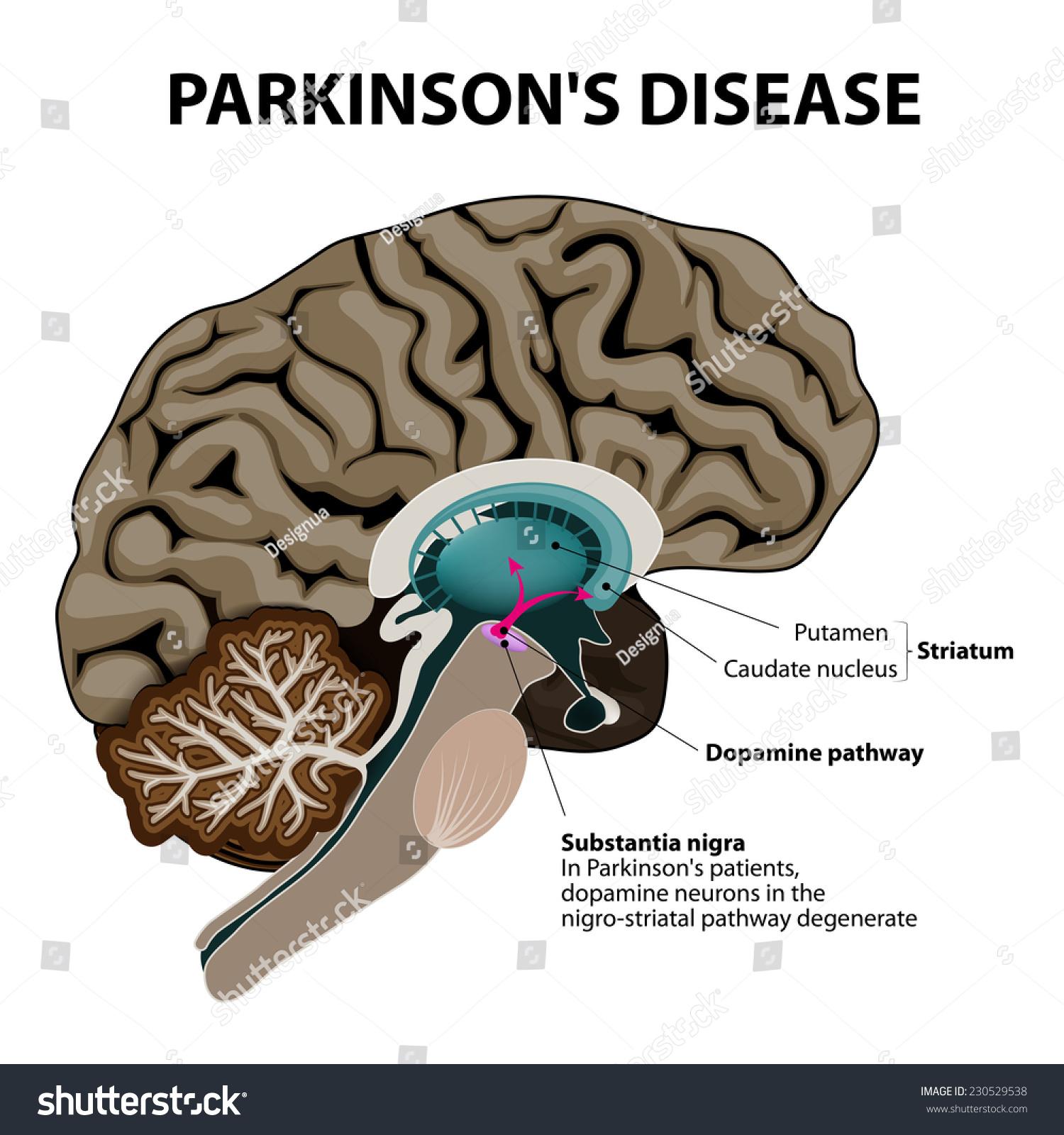 Parkinsons Disease Crosssection Human Brain Showing Stock