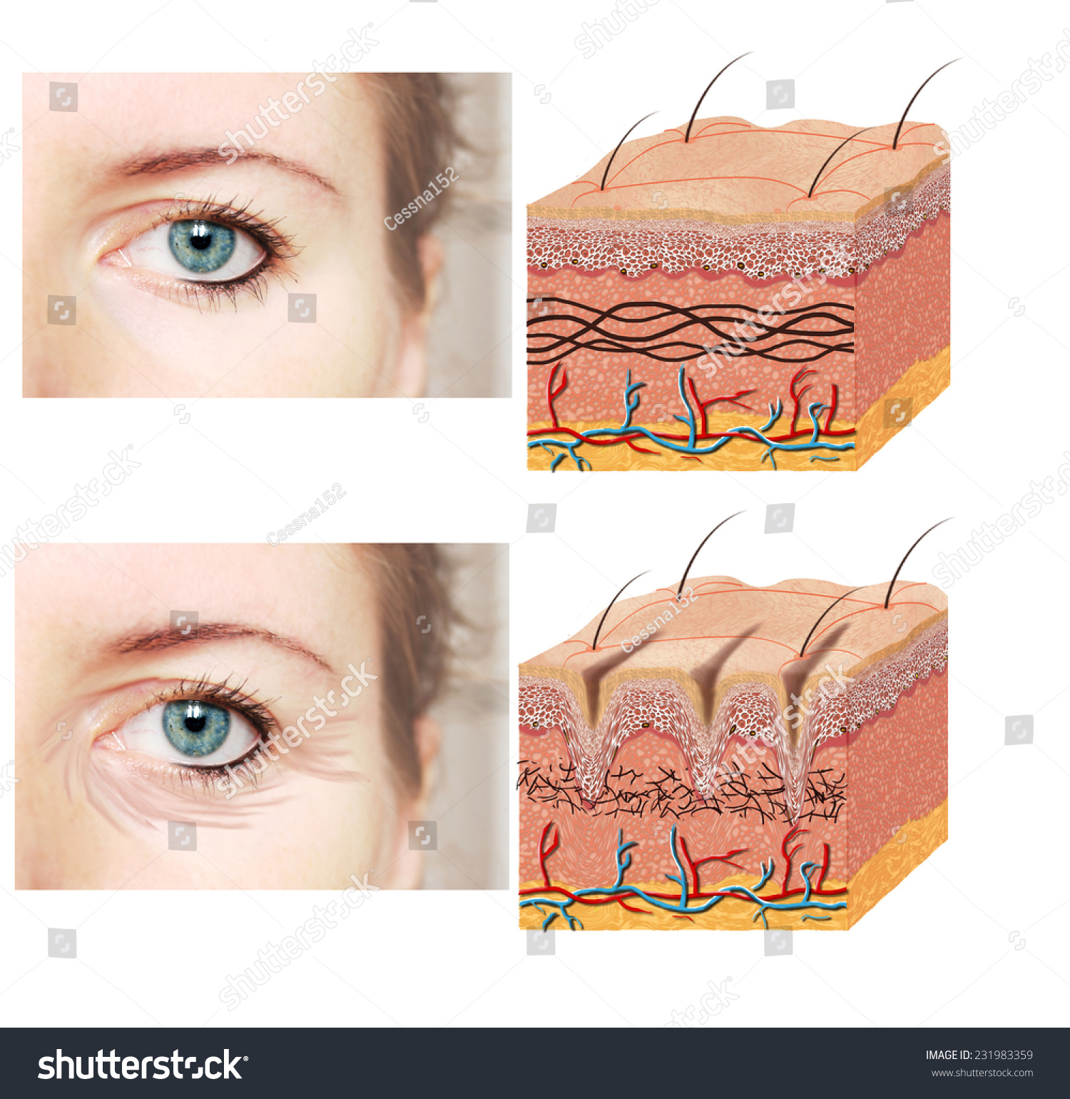 Skin Anatomy Diagram Younger Older Skin Comparation Stock Photo