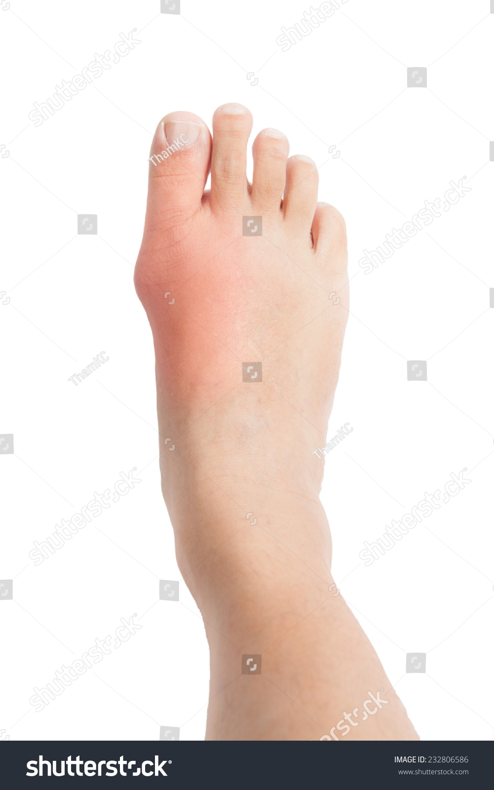 natural cure for gout in hands ways to reduce uric acid levels