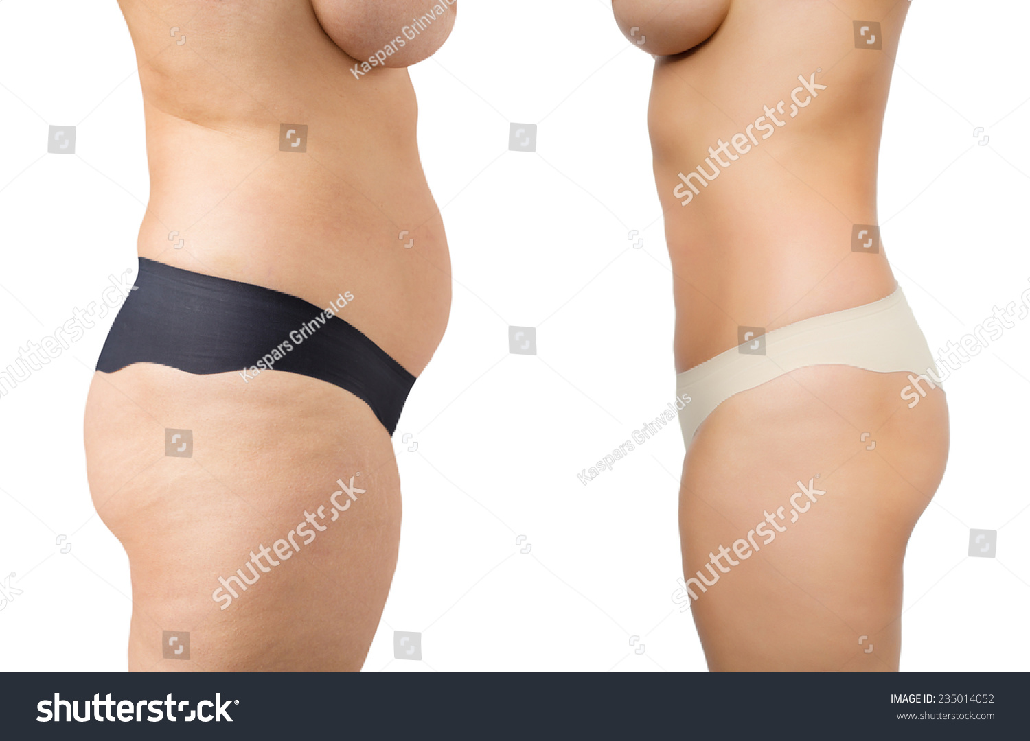 Before And After Weight Loss Stock Photo 235014052 ...