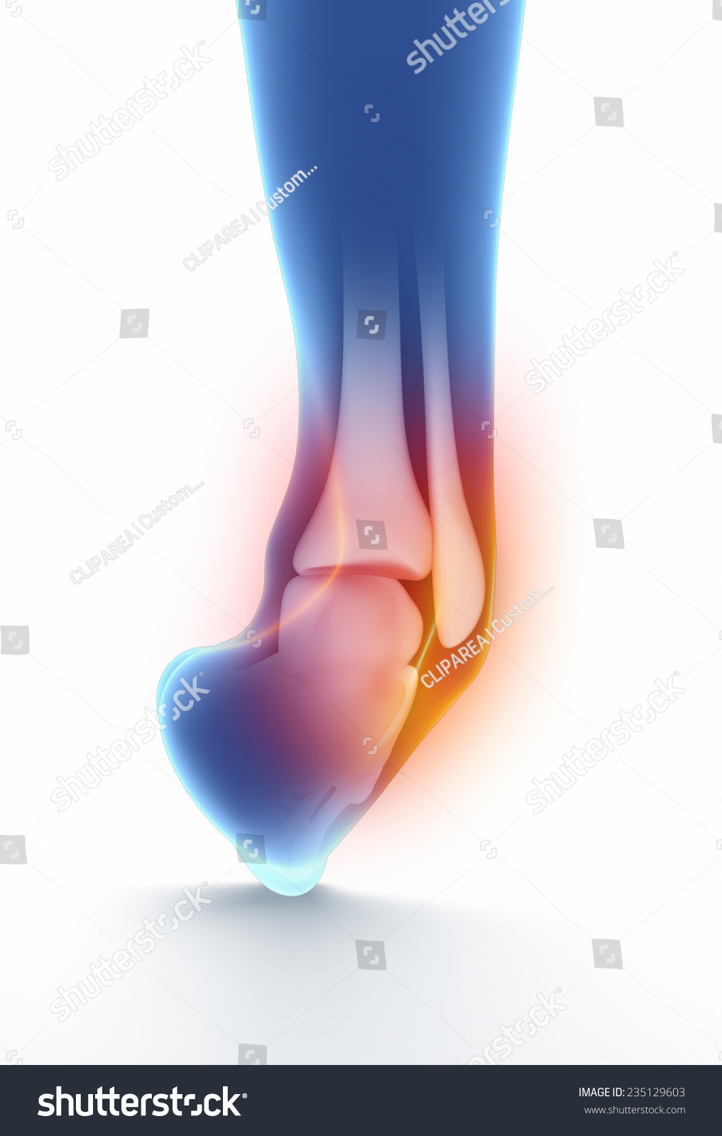 Sprained Ankle Blue On White Isolated Stock Illustration 235129603 ...