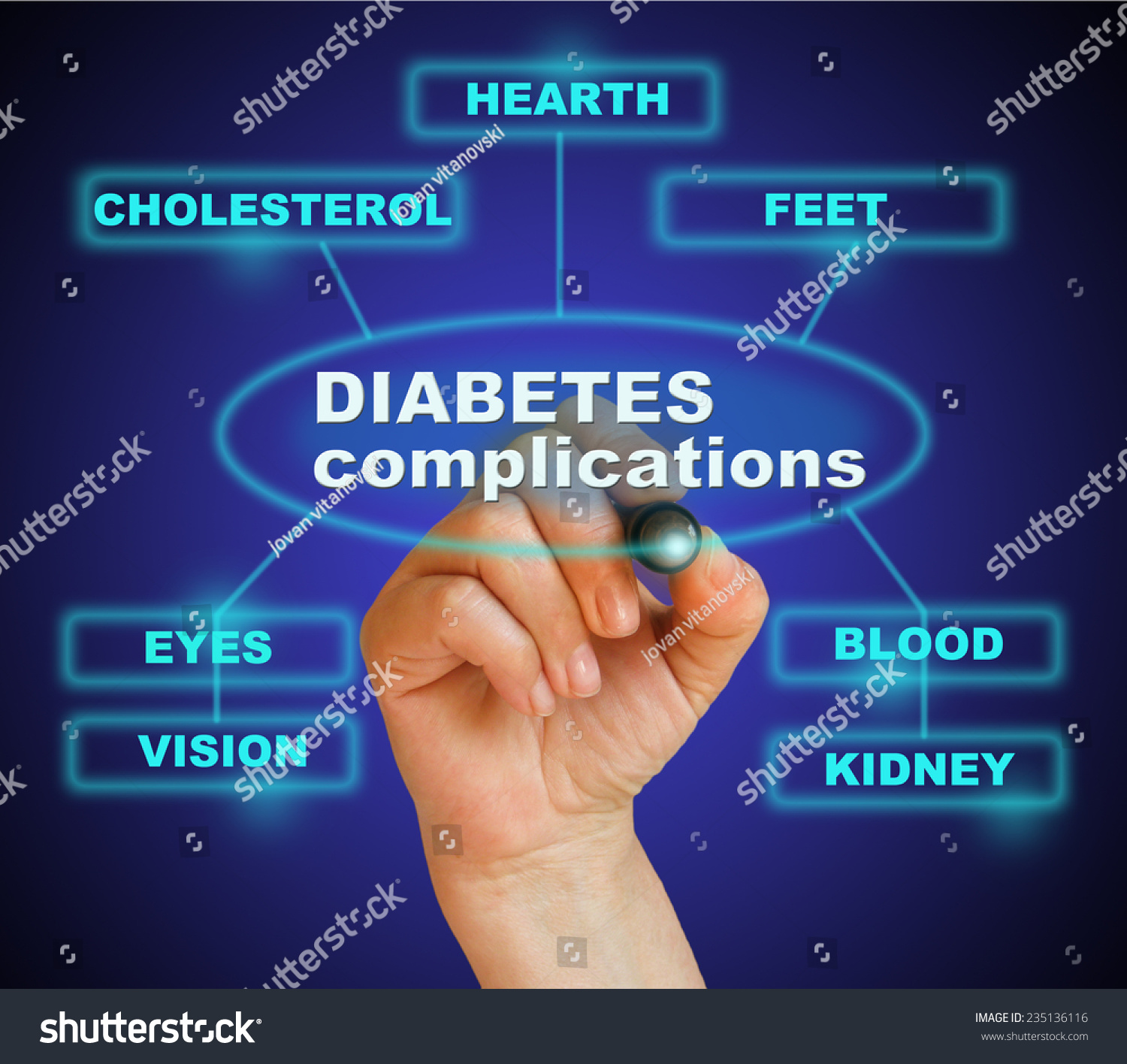 Writing Word Diabetes Complication Marker On Stock Photo ...