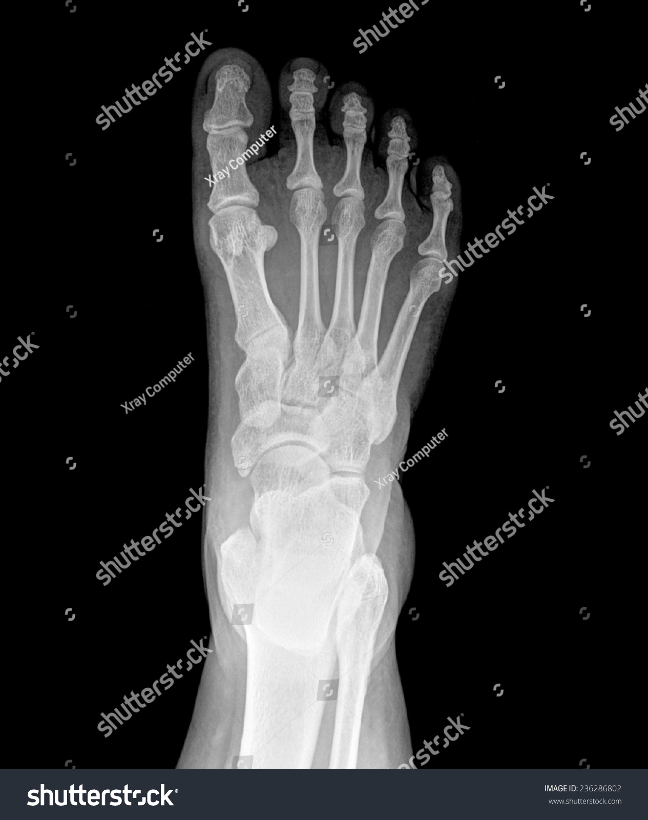 Top View Humans Feet Bones Under Stock Photo (Edit Now) 236286802 ...