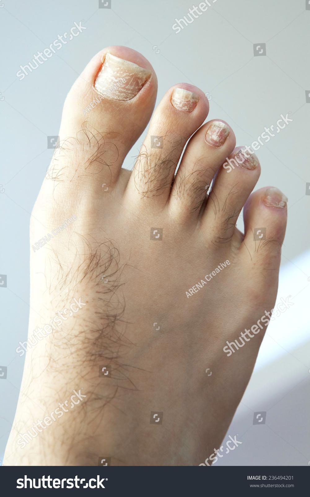 Closeup Human Foot Toes Cracked Peeling Stock Photo (Royalty Free ...