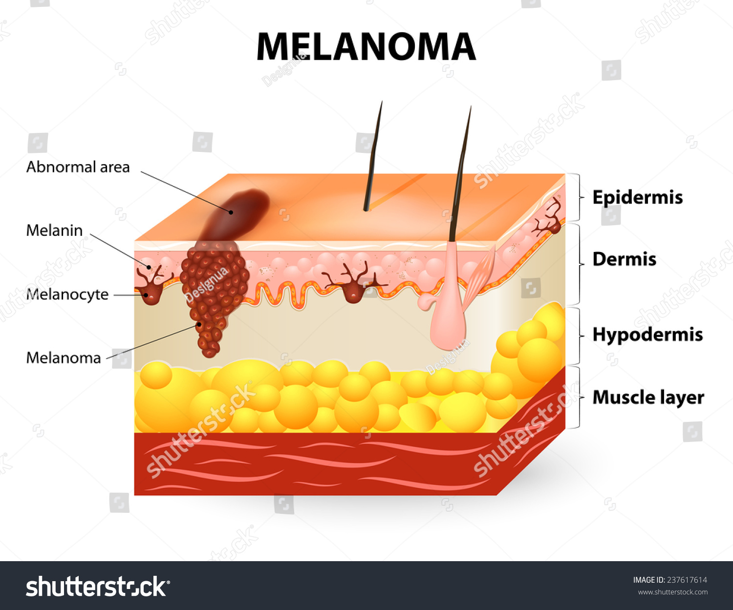 Melanoma Skin Cancer This Rare Type Stock Vector Royalty Free