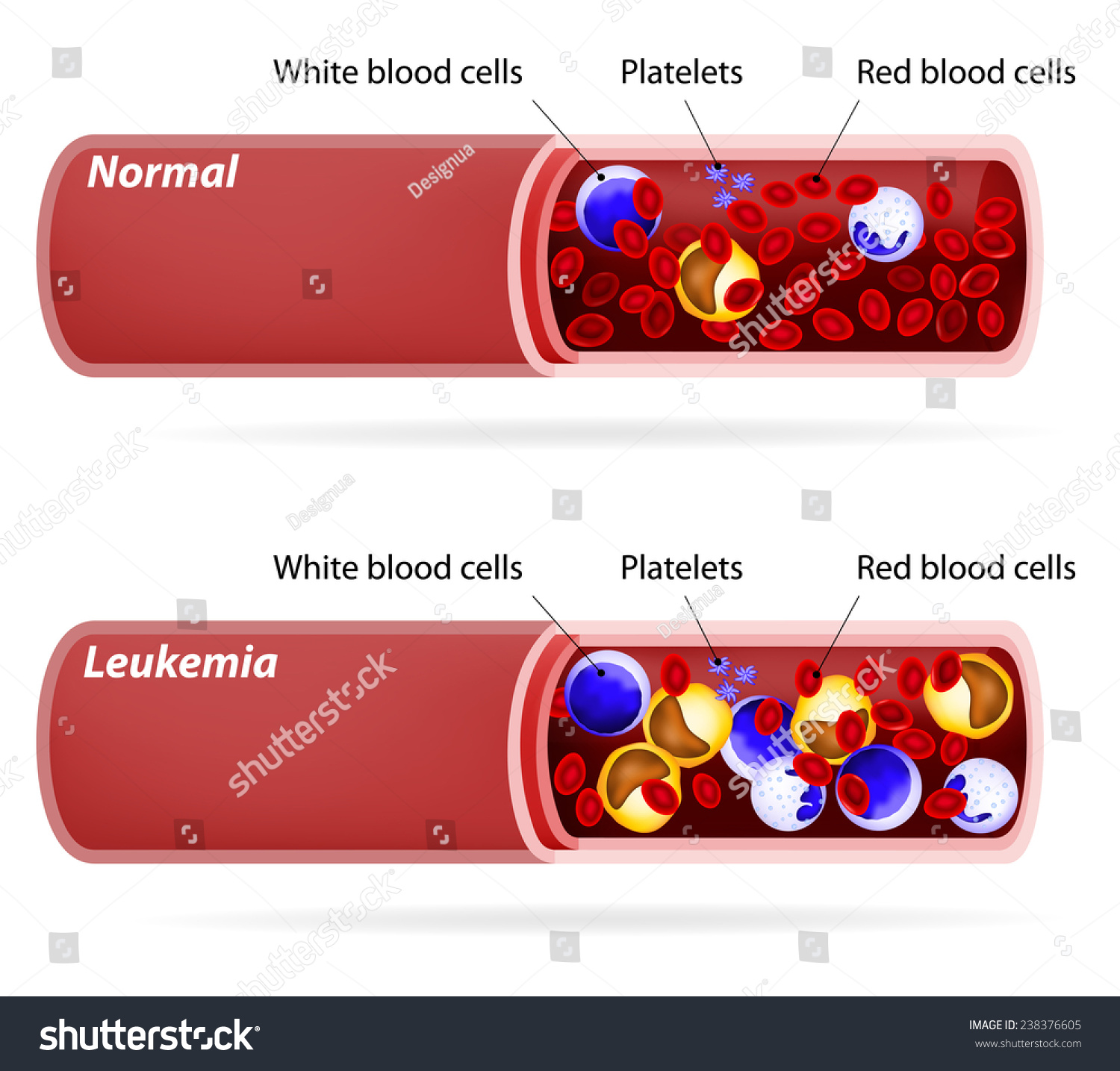 Stock Vector Cancer Blood