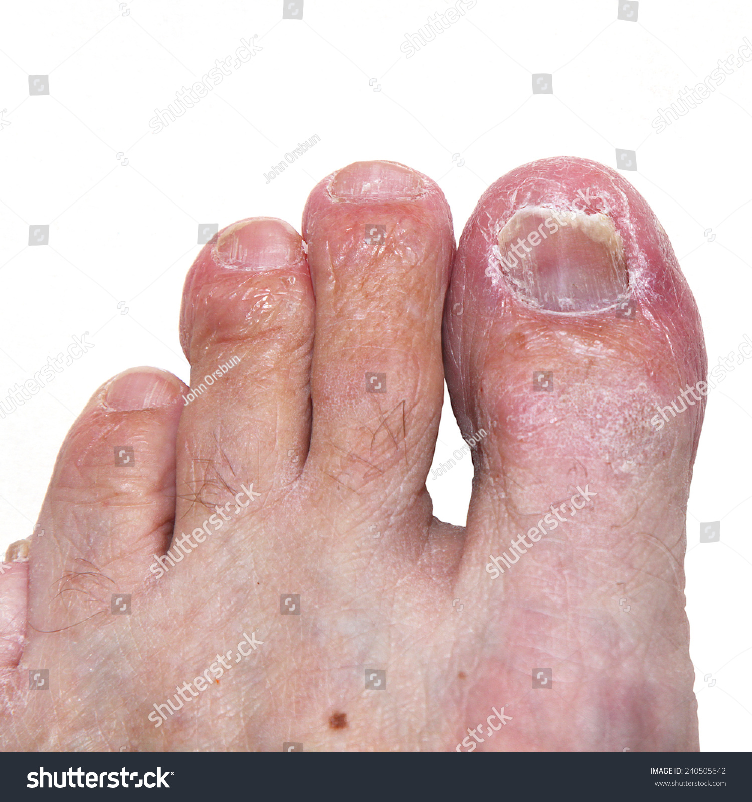 A Moderate To Severe Case Of Athletes Foot (Tinea Pedis