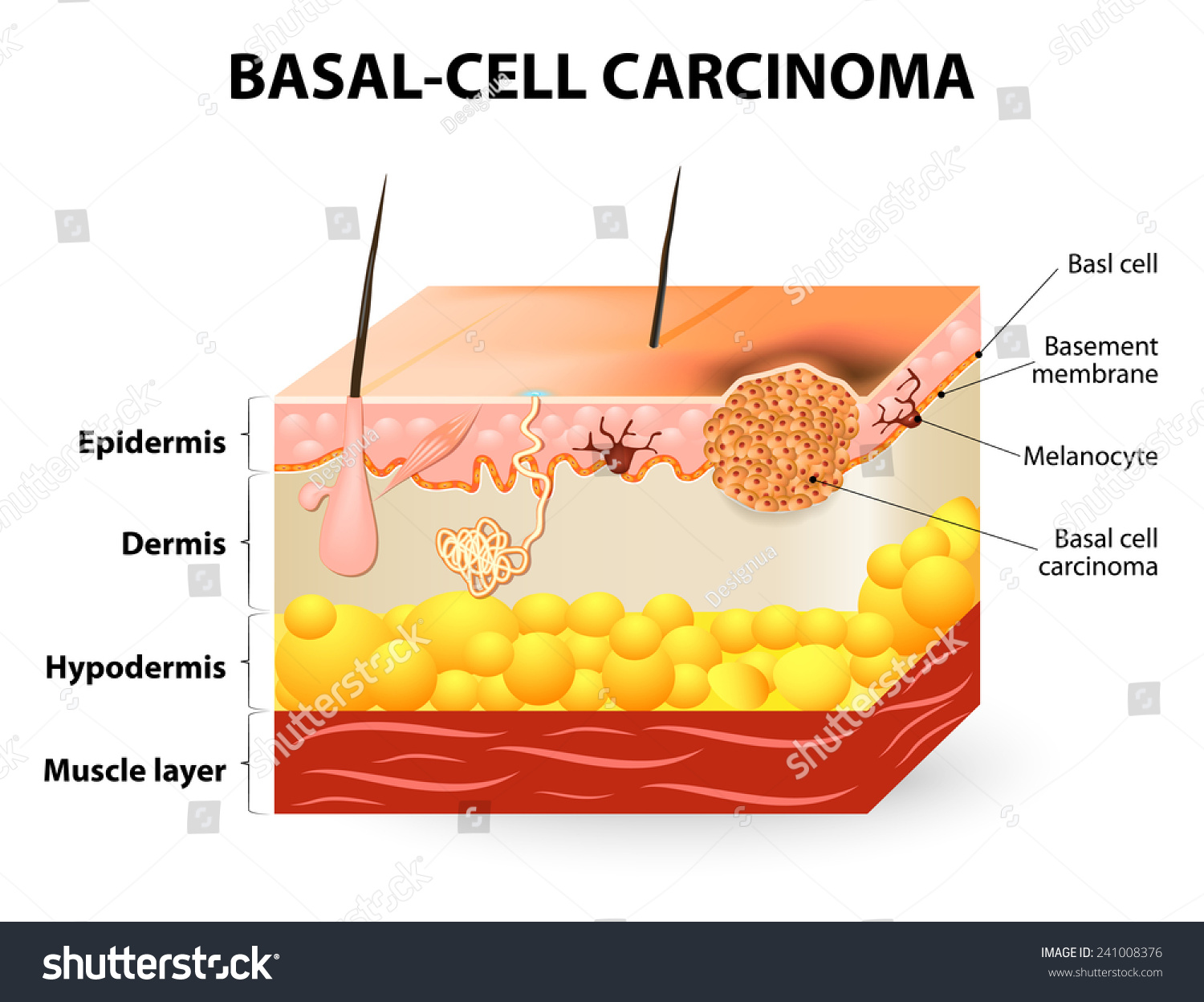 basal cell carcinoma essay Squamous cell carcinoma is the second most common form of skin cancer — though it is deadlier than the more commonly occurring basal cell if left untreated, squamous cell carcinomas are more .