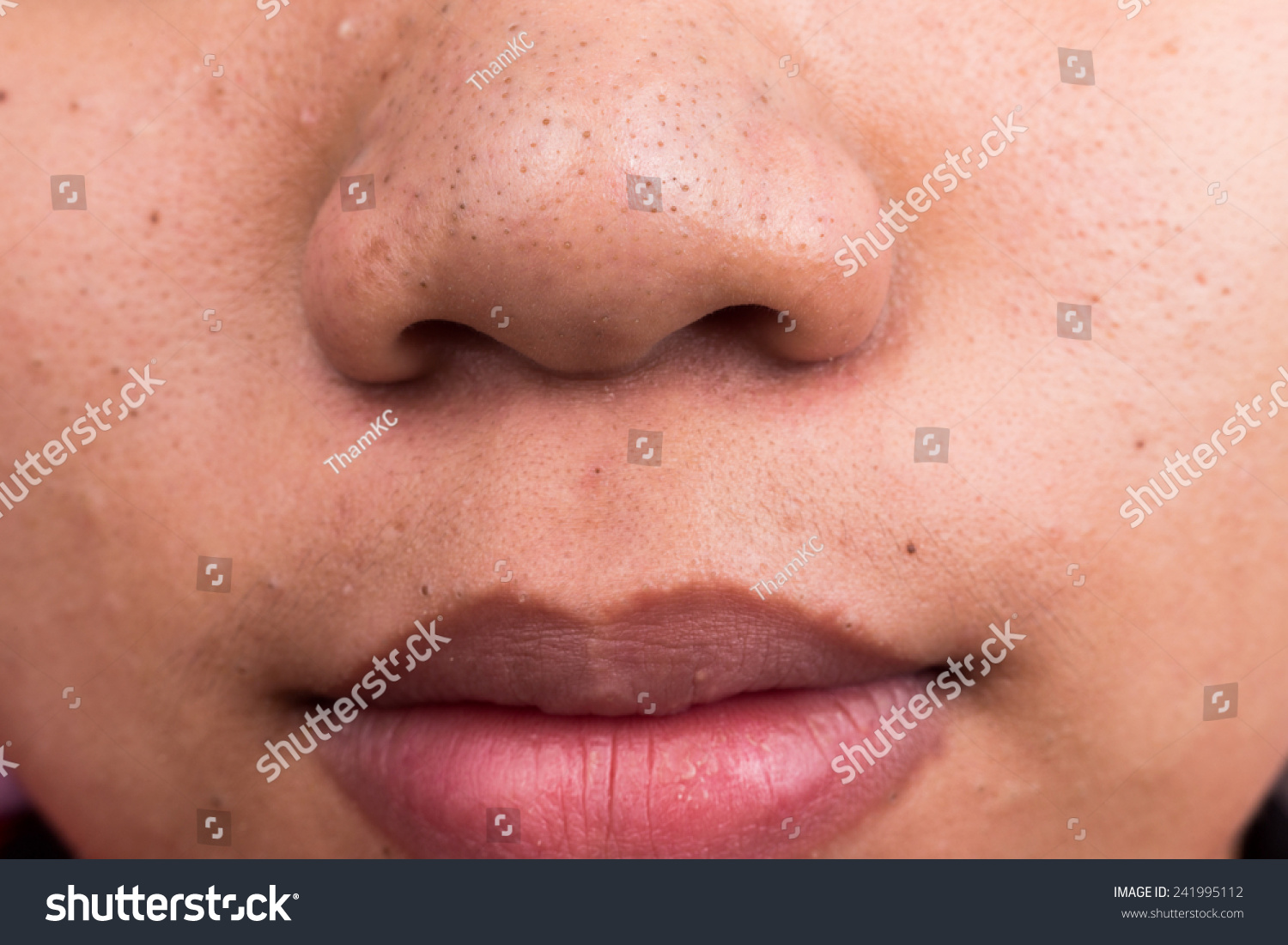 Pimple Blackheads On The Nose And Mouth Area Of An Asian ...