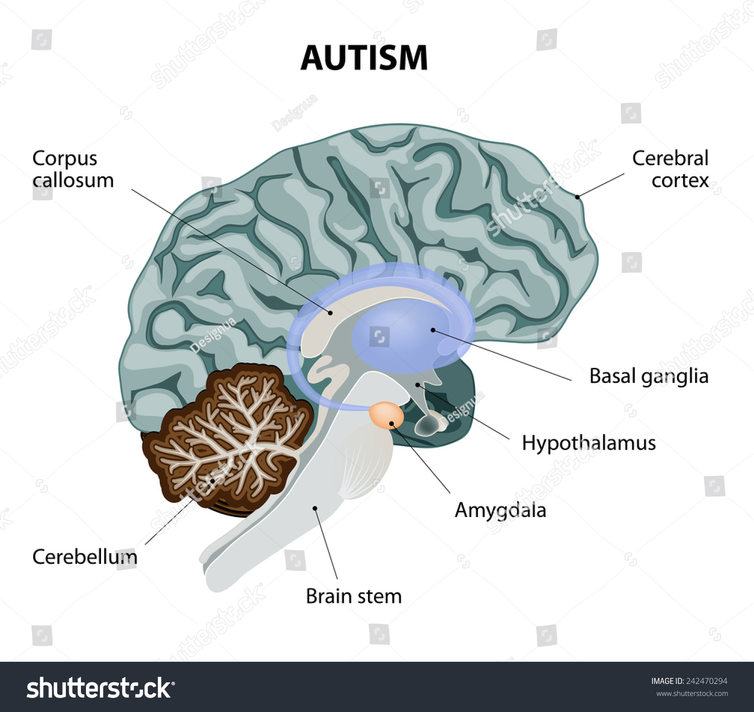 Parts Brain Affected By Autism Medical Stock Illustration 242470294 ...