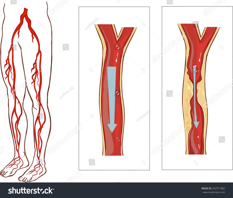 Vascular System Legs Atherosclerosis Artery Stock Vector Royalty