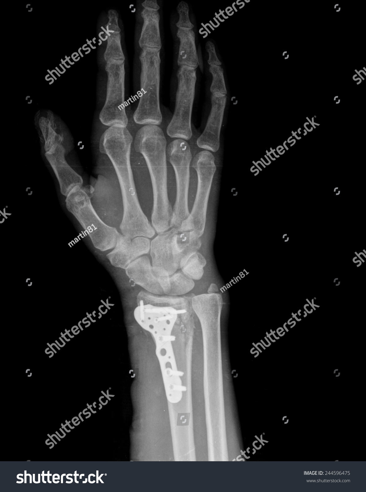 Left hand x-ray in lateral view of healthy subject | EZ Canvas