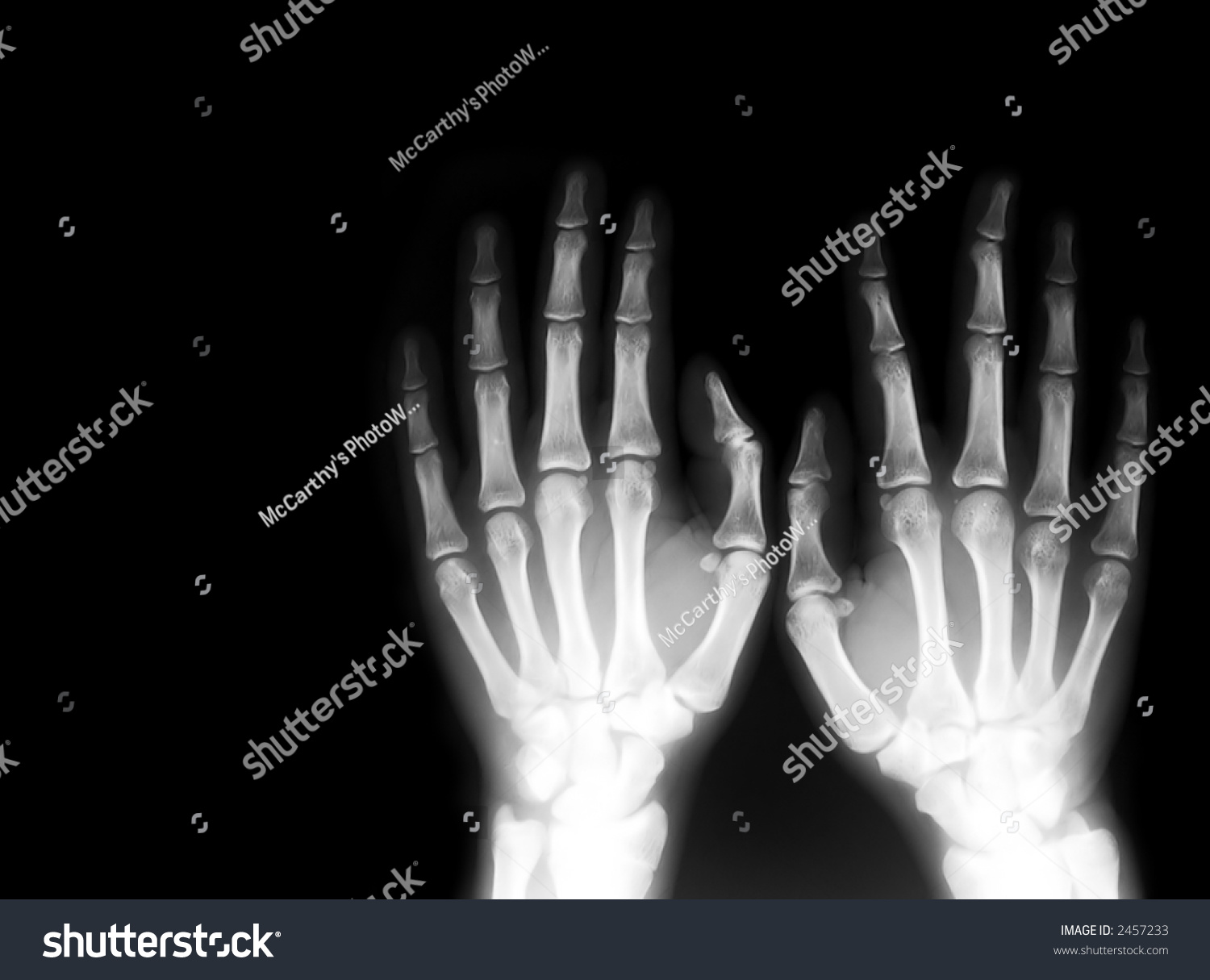 X Ray Series Illustrations Depicting Various Parts Stock Photo Edit