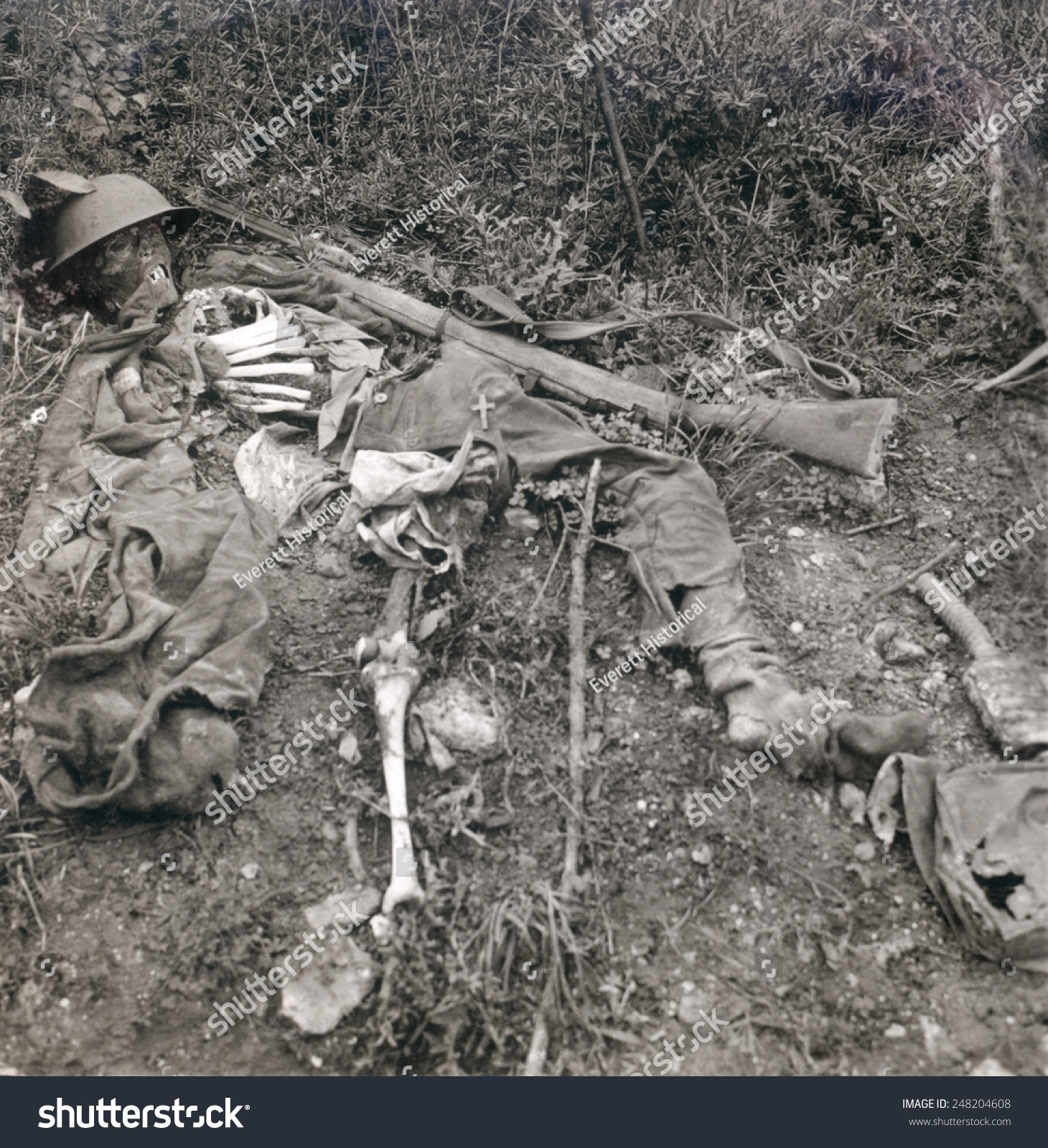 World War 1 Human Wreckage No Stock Photo (Royalty Free) 248204608 ...