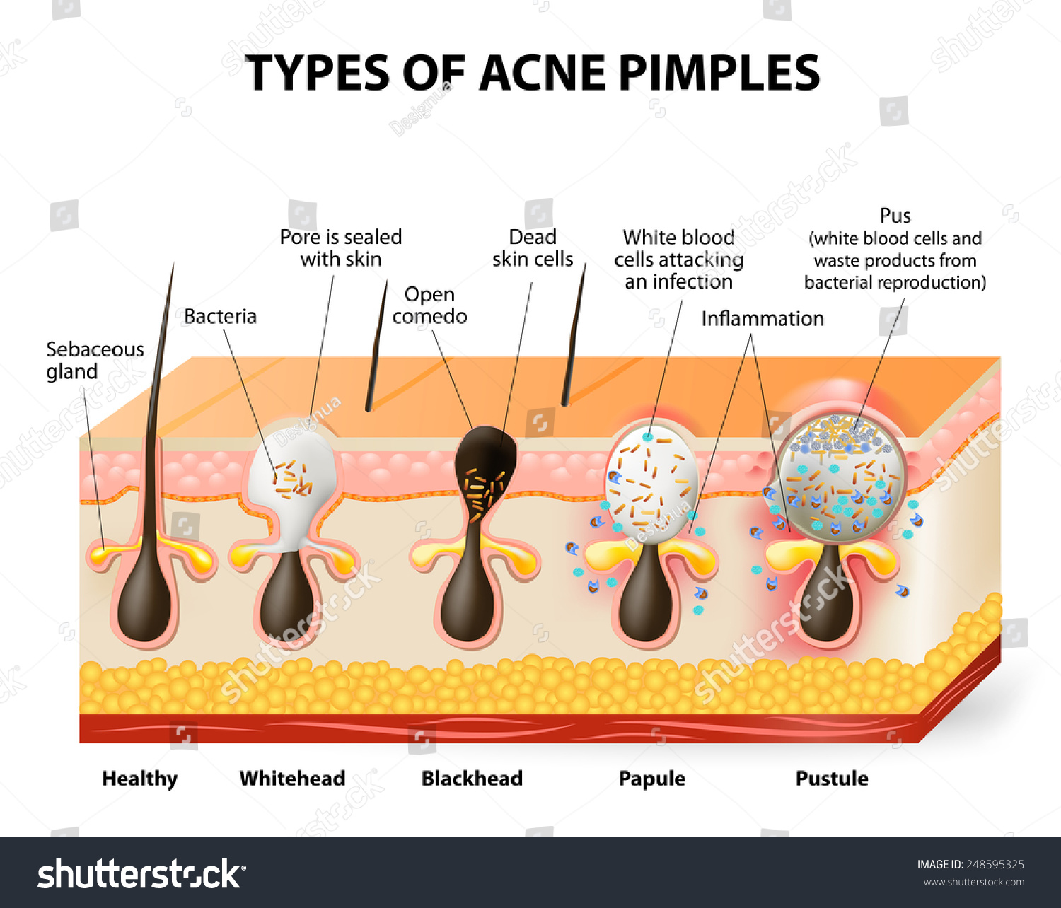 types acne pimples healthy skin whiteheads stock vector royalty rh shutterstock com