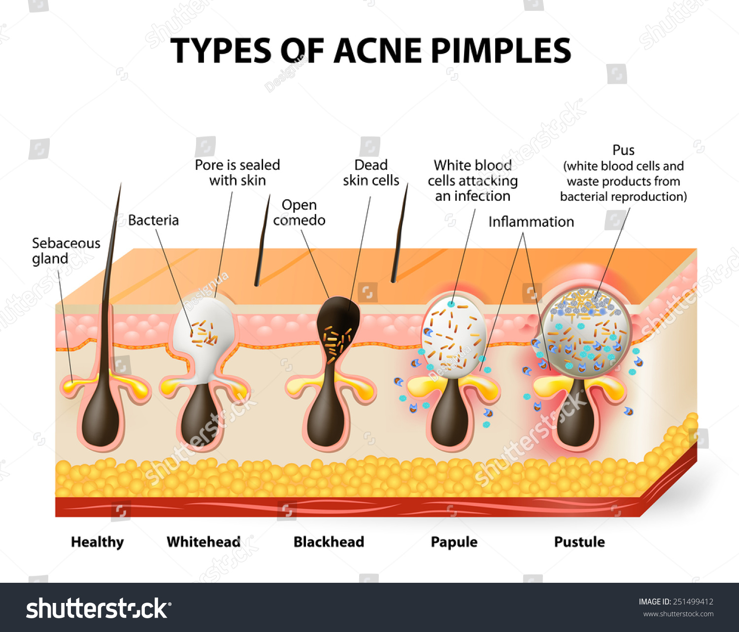 Types Acne Pimples Healthy Skin Whiteheads Stock Illustration ...