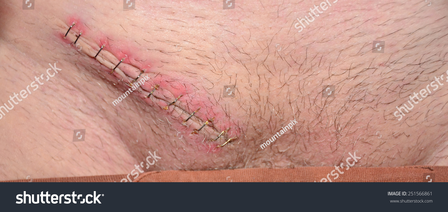 Closeup 1 Week Old Castration Scar Stock Photo Edit Now 251566861