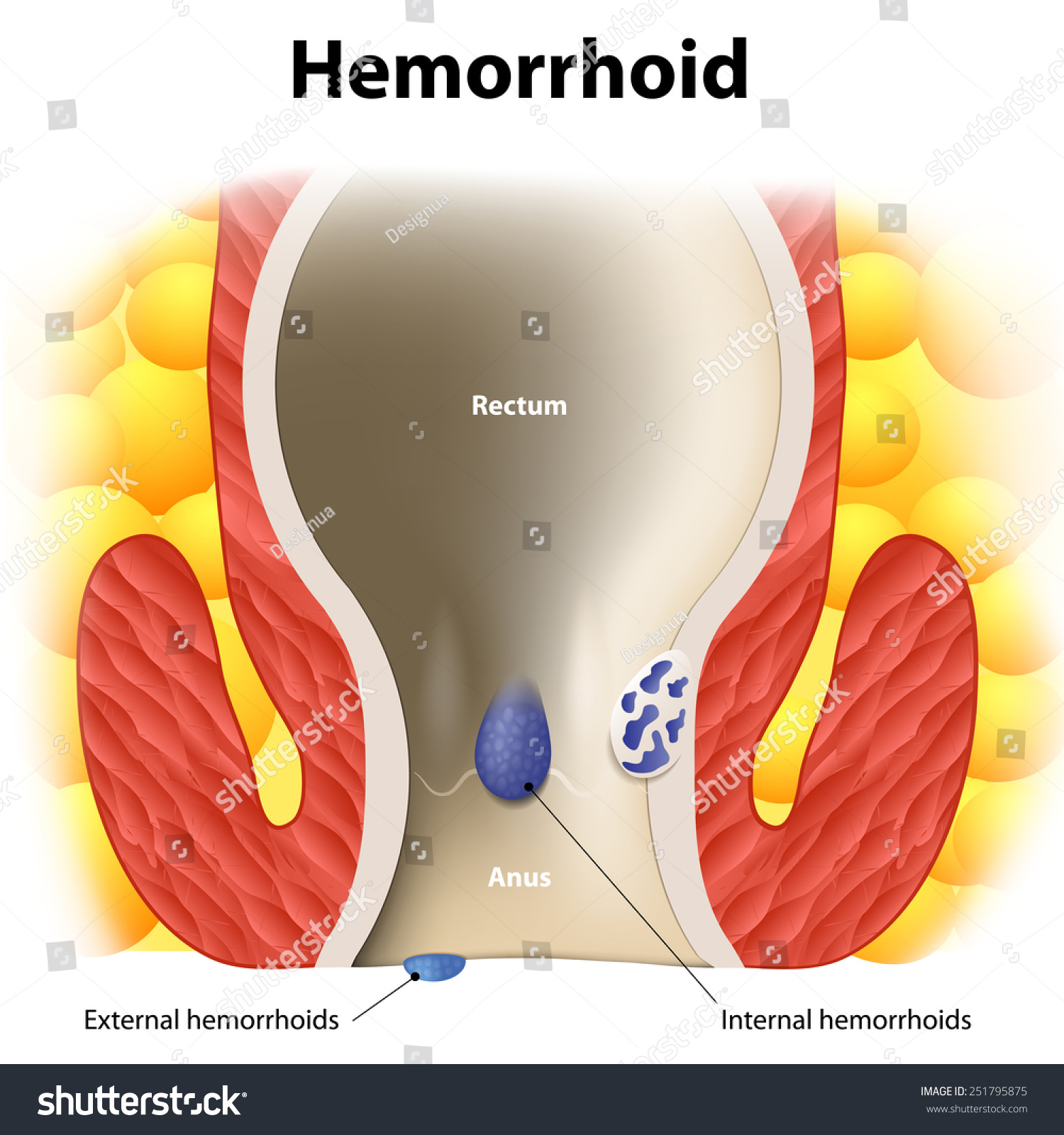 Diagram Anal Anatomy Internal External Hemorrhoids Stockillustration
