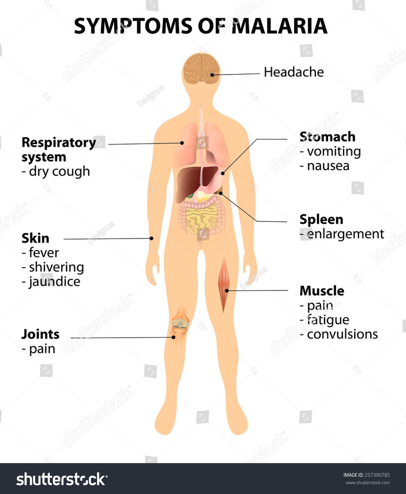 How to Recognize Malaria Symptoms