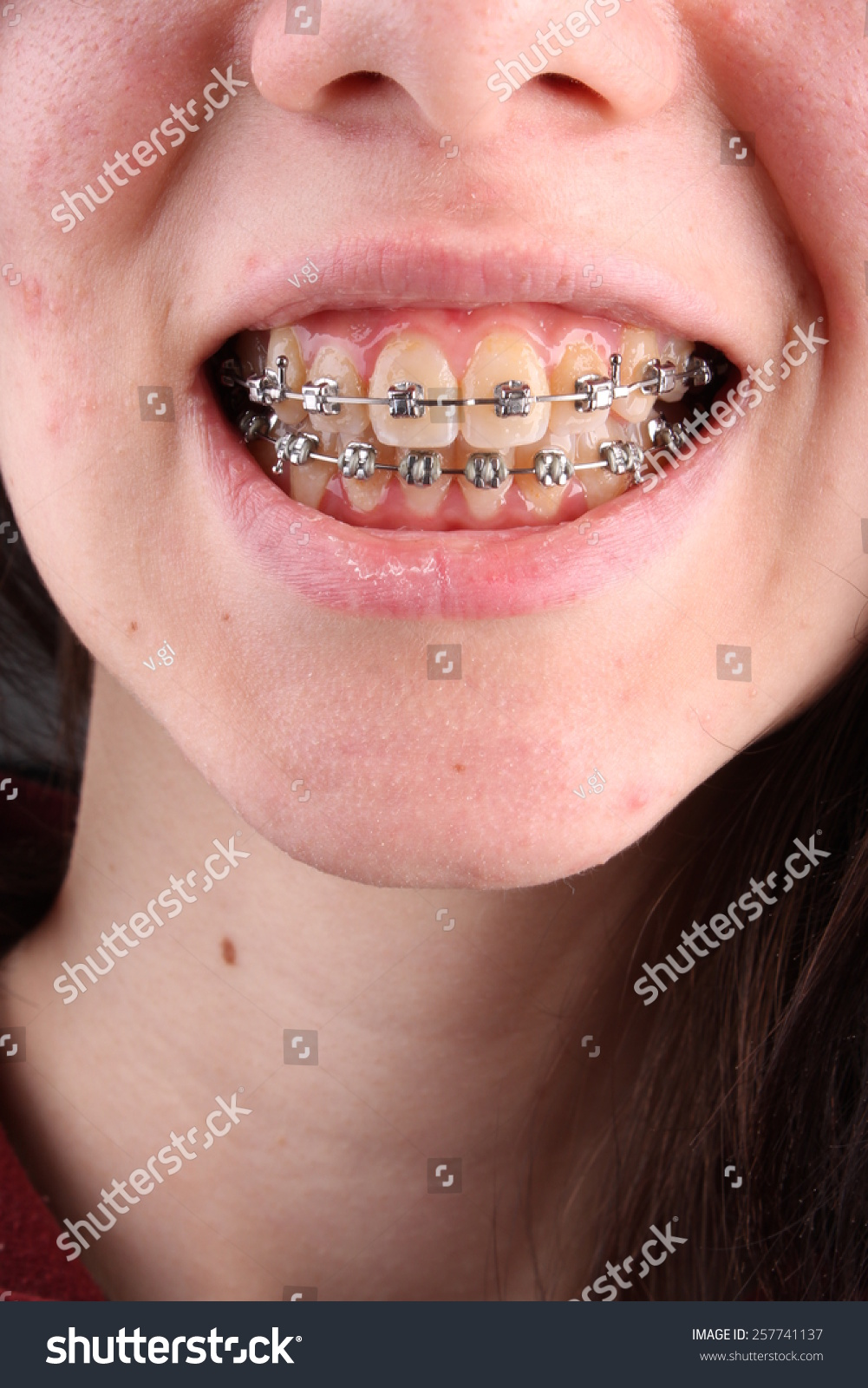 ugly teens with braces pain