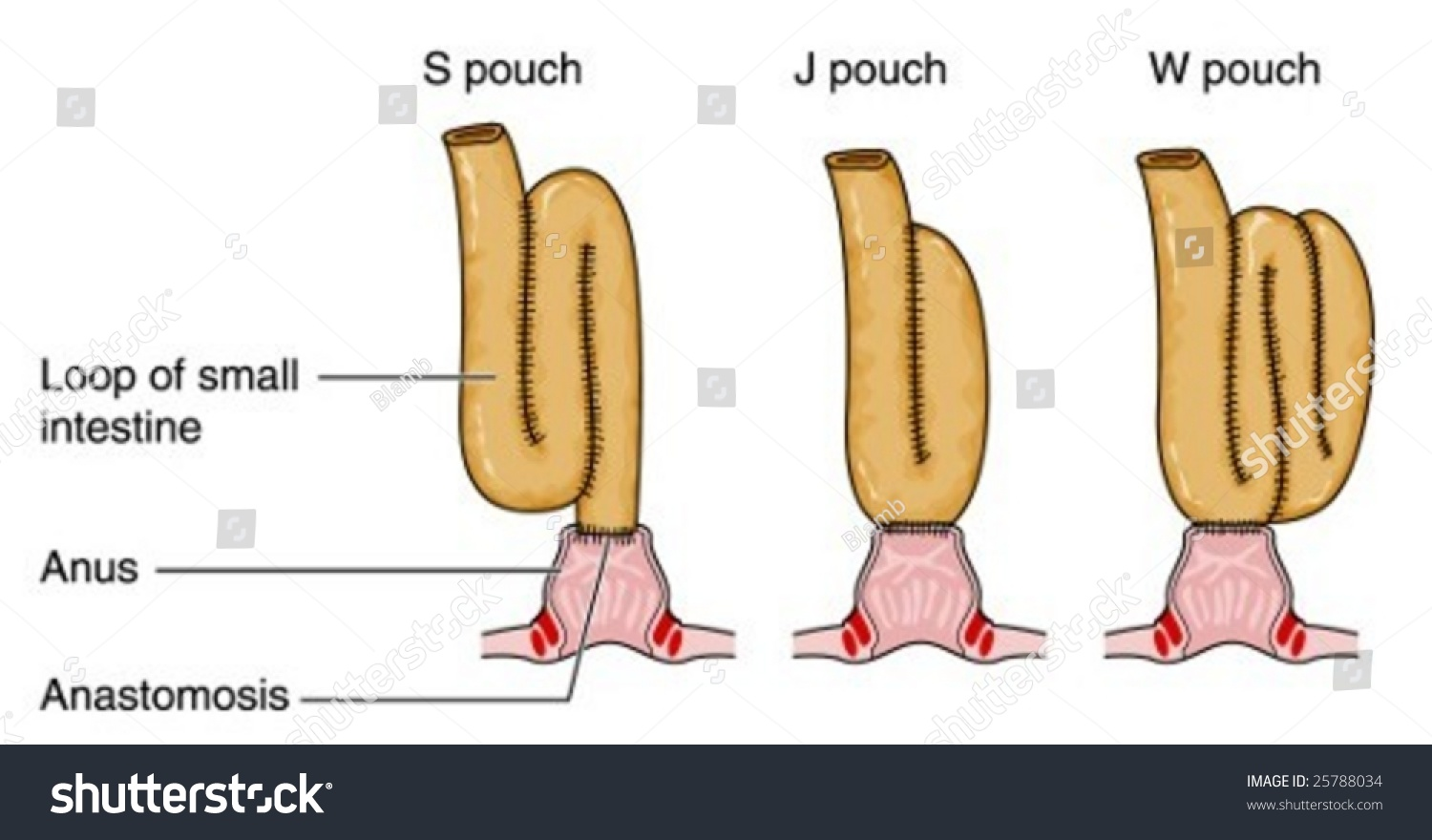 Formation S J W Pouches After Stock Vector 25788034 - Shutterstock