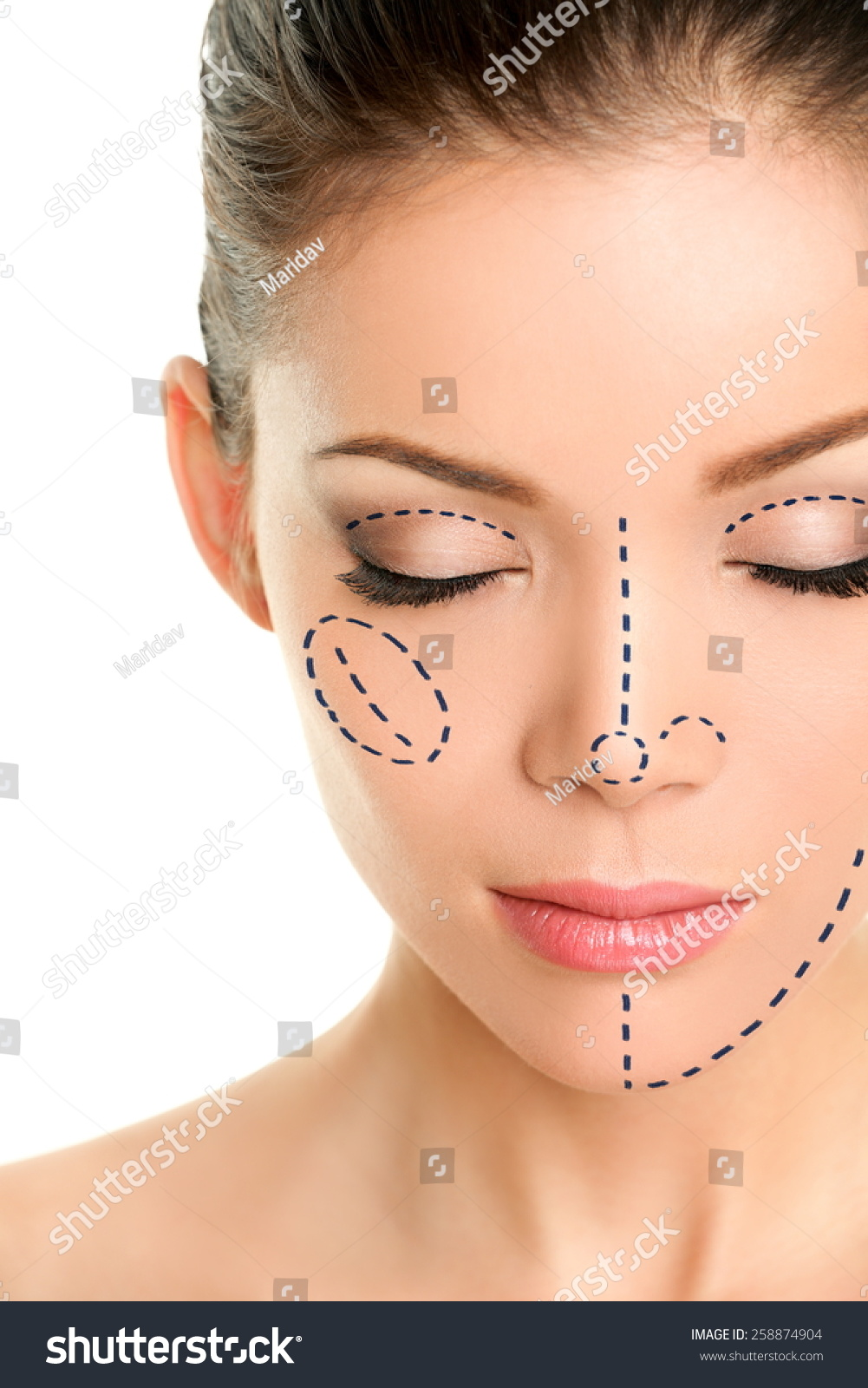 Cosmetic Surgery Of The Asian Face 14