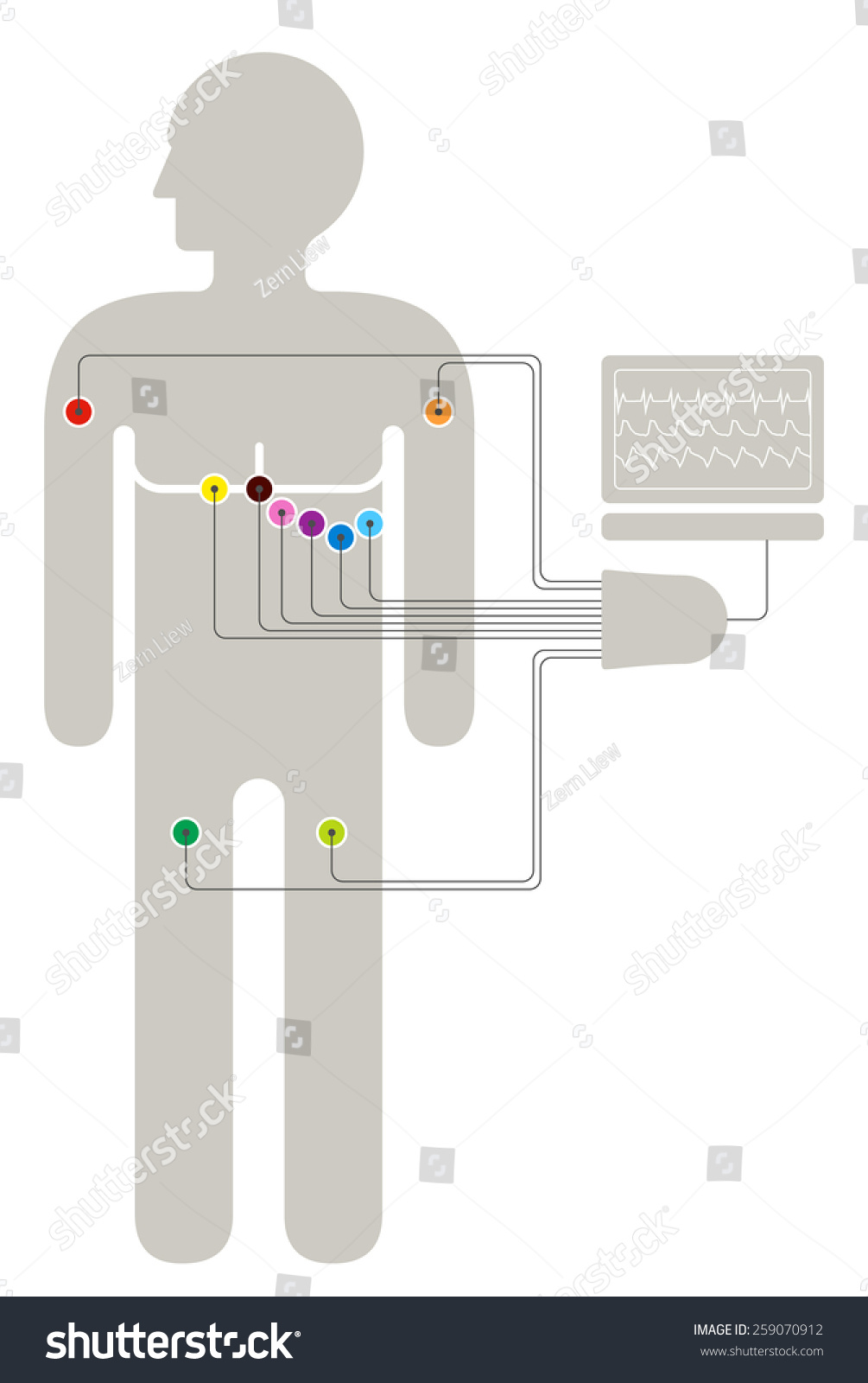ECG wiring diagram showing 6+2+2 colour-coded sensors connected to a