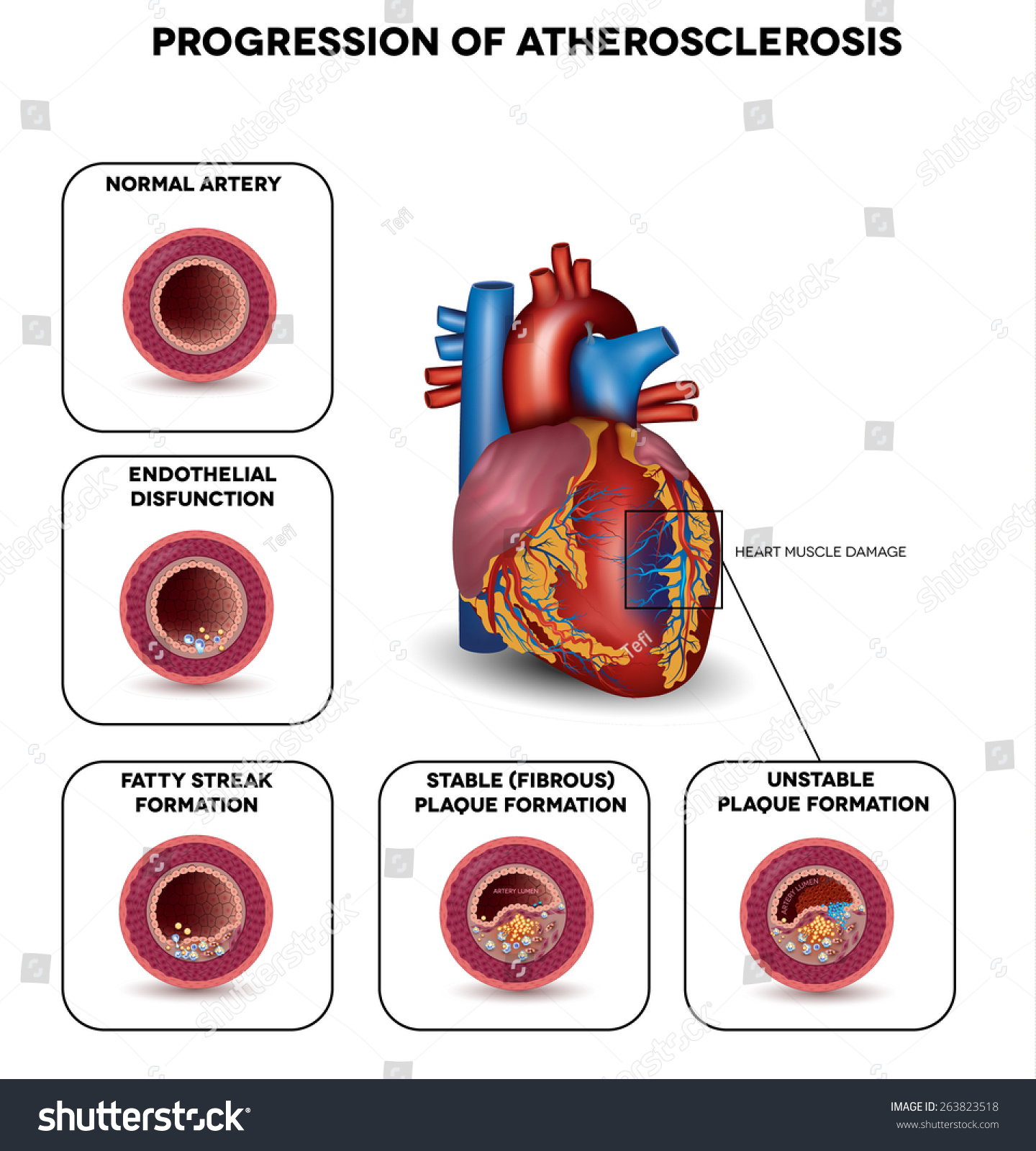 Progression Atherosclerosis Till Heart Attack Heart Stock