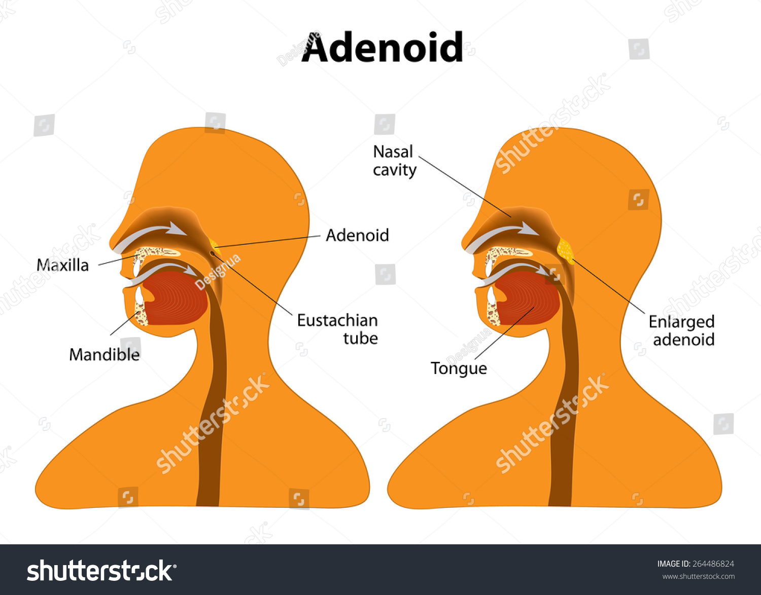 Adenoid Side View Show Position Adenoids Stock Illustration