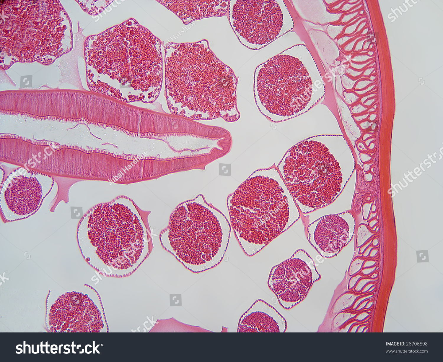 Roundworm cross section
