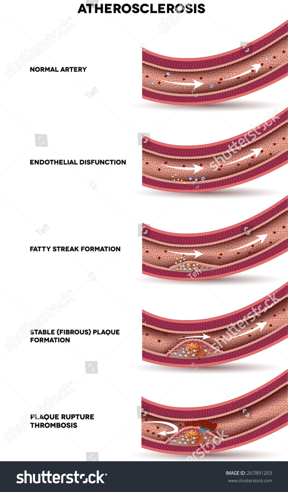 Atherosclerosis Stages atherosclerosis . detailed illustration of ...