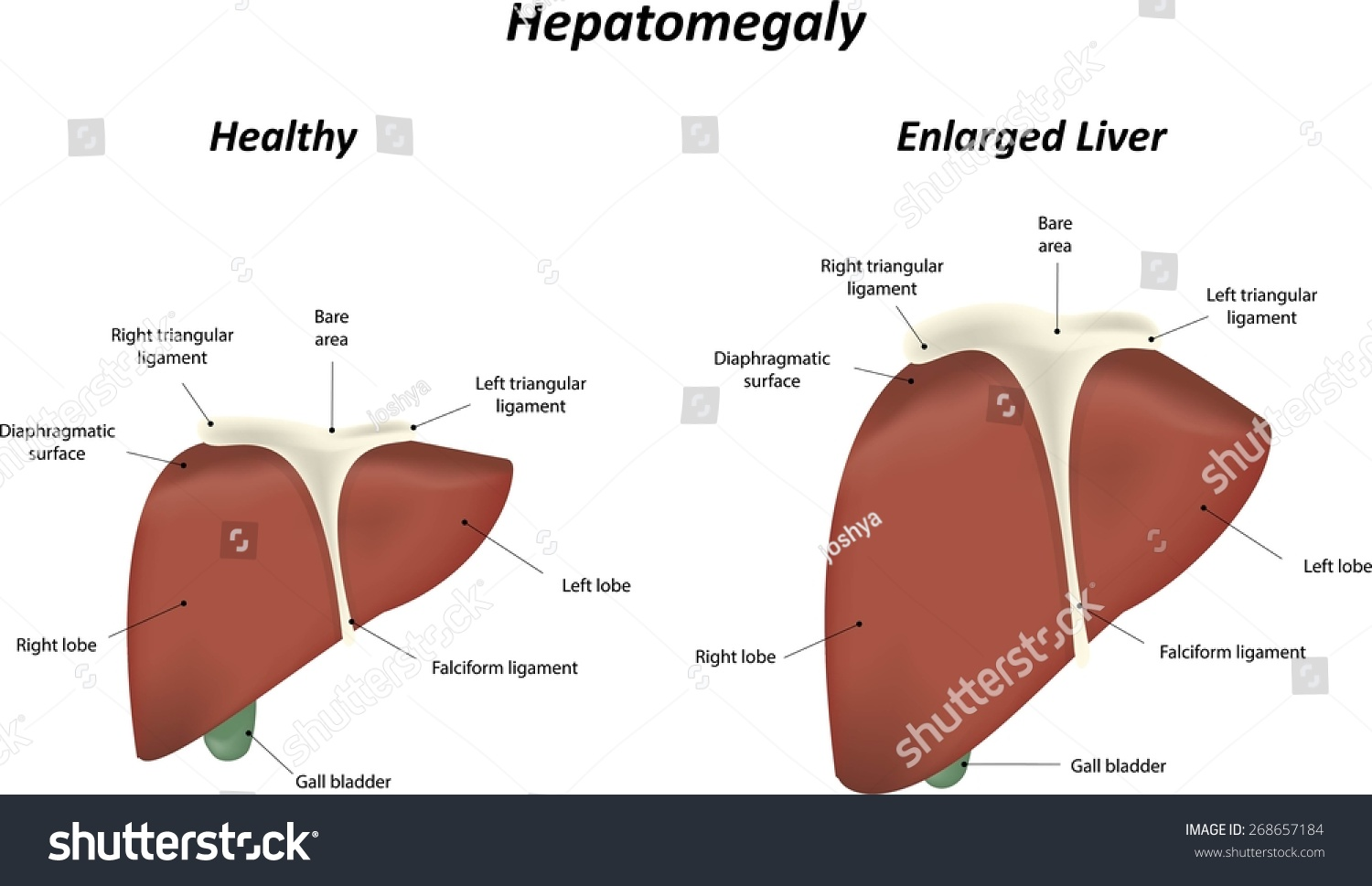 hepatomegaly enlarged liver stock vector 268657184 - shutterstock, Skeleton