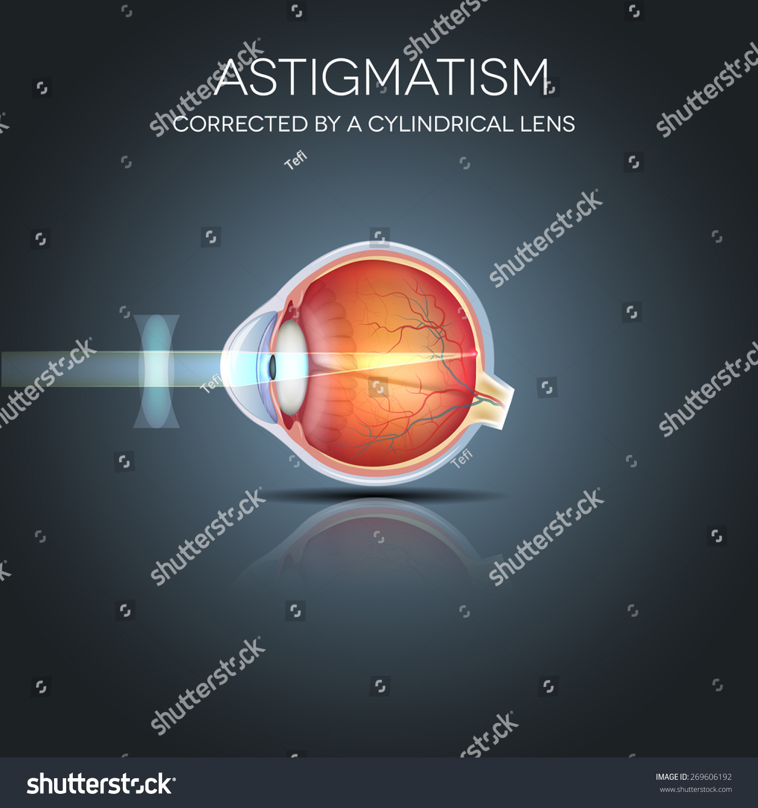 Astigmatism Corrected By Cylindrical Lens Eyesight Stock ...